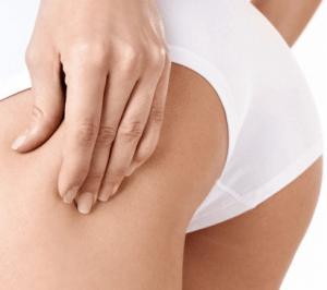 Frau mit Cellulite