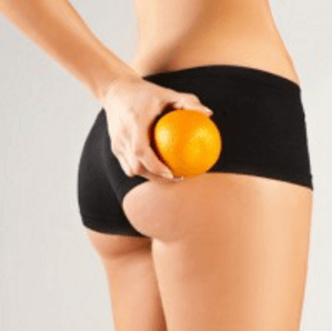 Cellulite bei Frauen bekämpfen